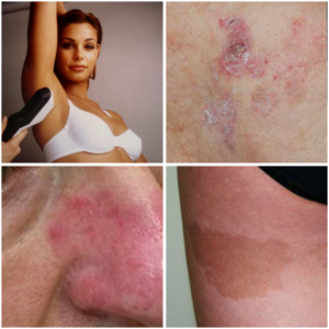 Fotos van Samenvatting van behandelingen