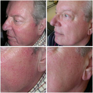 verwijderen van diffuse roodheid keratosis pilaris blooswangen