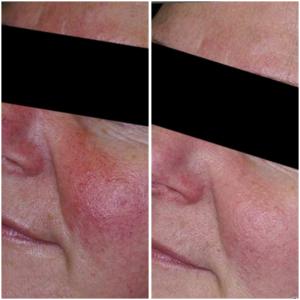 Foto Blooswangen voor en na 3 behandelingen