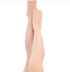 bezemrijsvarices op benen