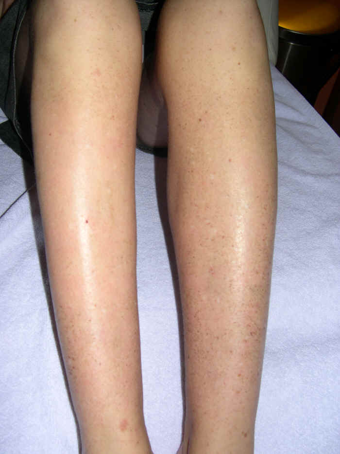 Pigment na benen